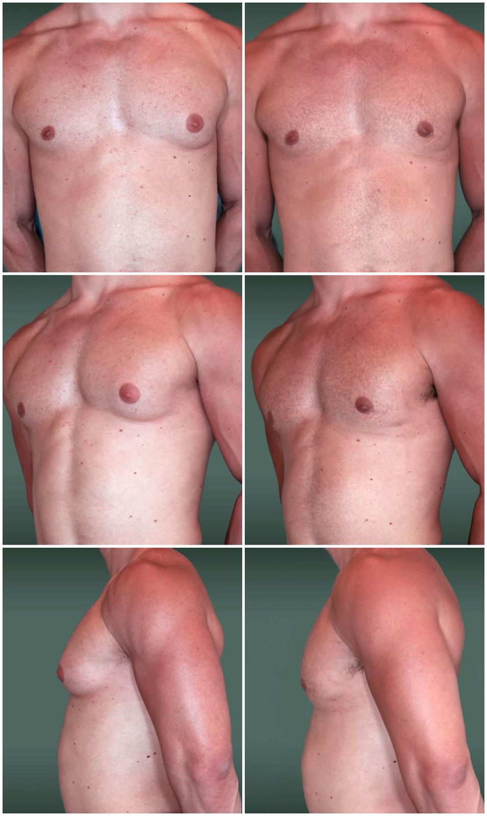 Простатит и гинекомастия физиоаппараты от простатита