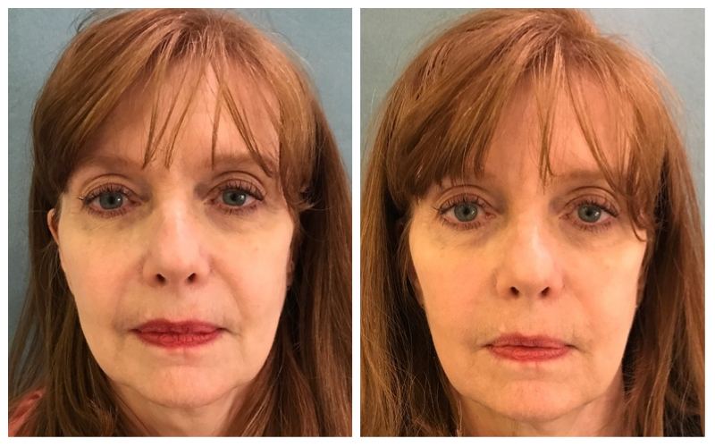 Facial Fillers Before and After Photos | Dr  Mark H