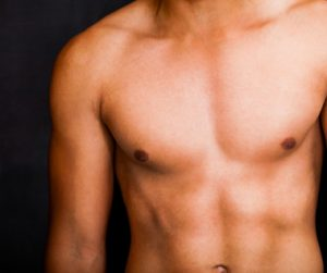 Male Breast Reduction Surgery in new York City & Manhattan