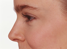 Nose Surgery (Rhinoplasty) in New York City & Manhattan