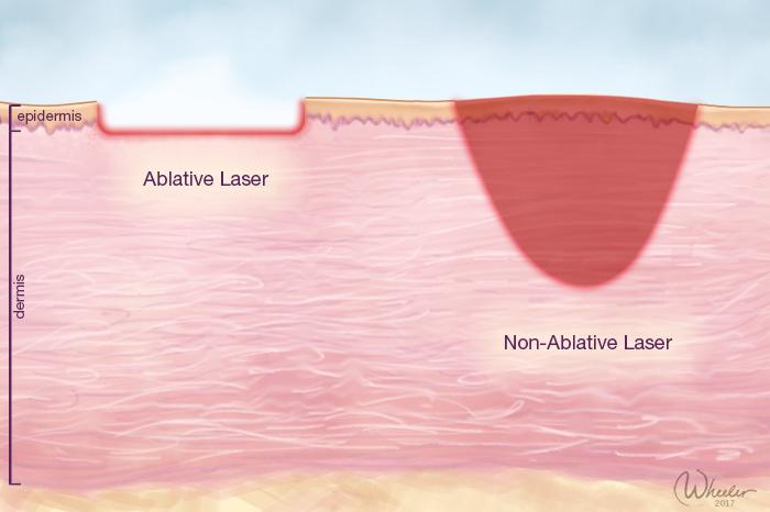 Laser skin peel New York City