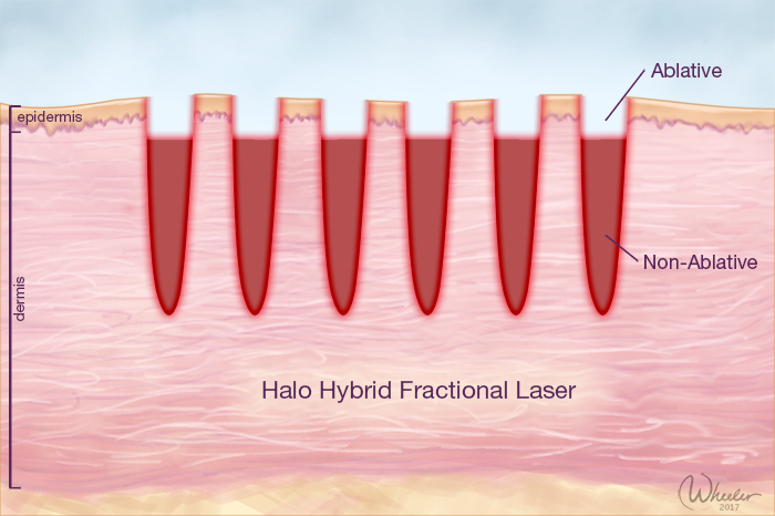 Laser skin treatment Manhattan, New York City
