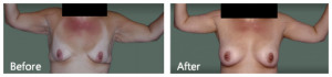 Brachioplasty after weight loss NYC