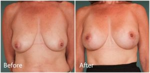 Breast implants with lift NYC