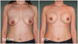 Breast reconstruction before & after Manhattan