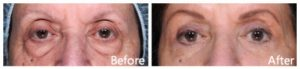 Eyelid surgery Manhattan