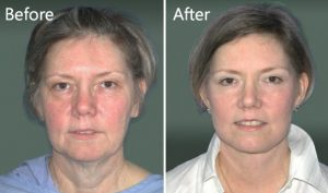 Facelift before & after NYC