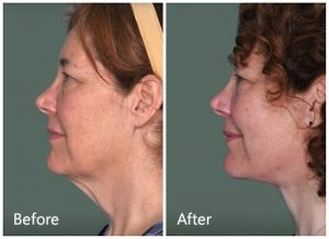 Facial rejuvenation after weight loss Manhattan, NYC