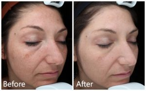 Hybrid fractional laser before & after NYC