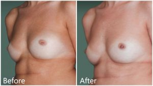 Inverted nipple correction Manhattan
