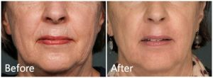 Laser skin peel before & after NYC
