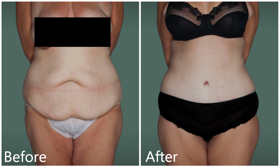Abdominoplasty after weight loss in NYC & Manhattan