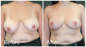 Breast reduction before & after NYC