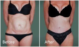 Tummy tuck Manhattan