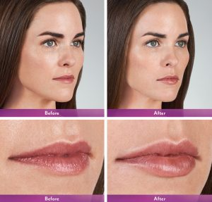 Lip fillers before & after Manhattan, NYC