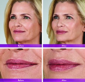 Cosmetic Injectable before & after NYC