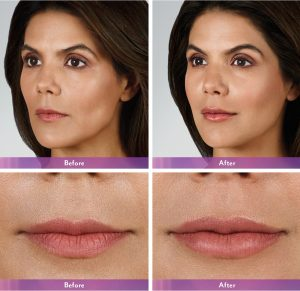 Juvederm Volbella before & after New York City