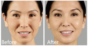 Juvederm Voluma before & after Manhattan, NYC